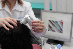 diagnostika-androgenoy-alopecii